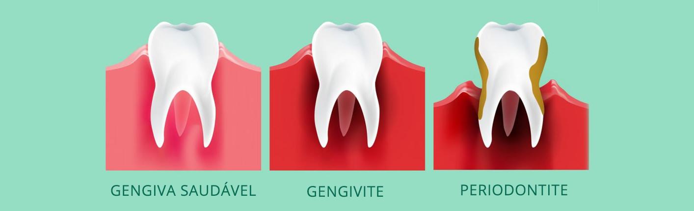 Resultado de imagem para periodontologia